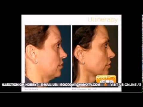 Elk Grove Medical Spa - Ultherapy - Featured on GoodDay Sacramento