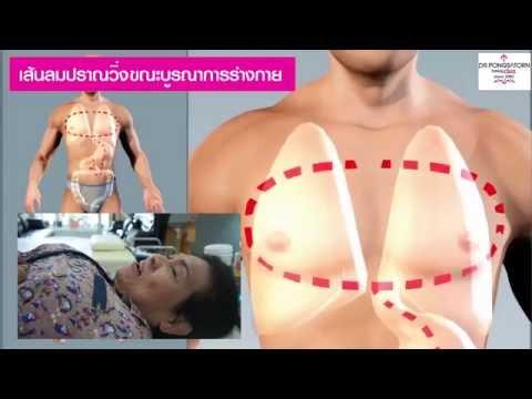 คุณจรูญ.... มีภาวะ โลหิตจางจากไขกระดูกฝ่อ (Aplastic Anemia) กระดูกเสื่อมทั้งตัว