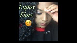 Another Lupus Flare|Weekend replay