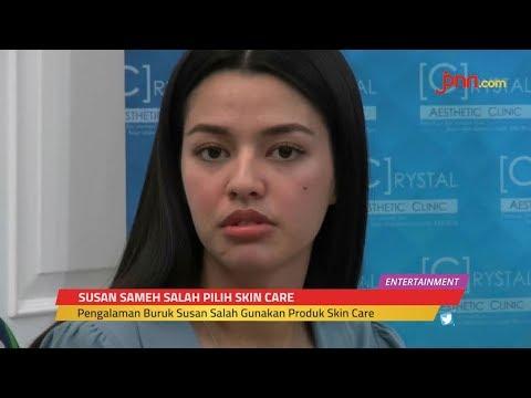 NGERI, Wajah Susan Sameh Pernah Rusak Parah Selama 3 Bulan
