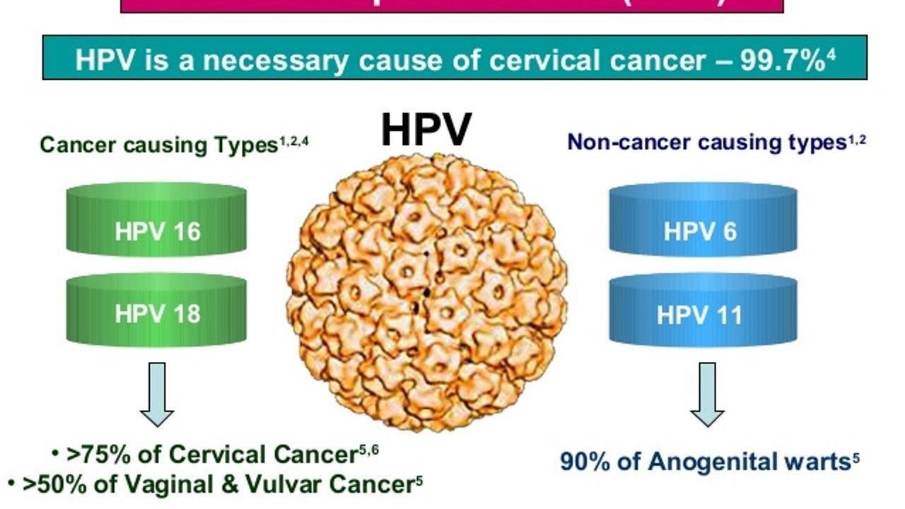 Cancer causing hpv strains, Human papillomavirus (hpv) strains