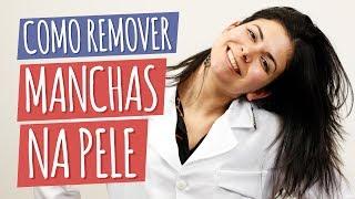 Melhores Tratamentos para Manchas na Pele