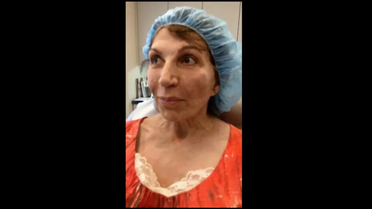 Non Surgical Facelift NYC | Silhouette InstaLift New York - Ron