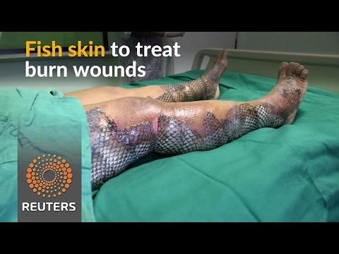 Fish skin provides relief for Brazil