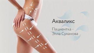 Акваликс, пациентка - Элла Суханова