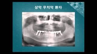 건강365 임플란트 오래쓰는 방법 본방