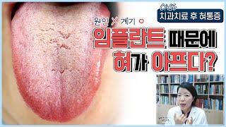 임플란트 시술 받고 혀가 아파요! 치과치료 후 혀통증 …