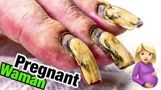 😱 TRANSFORMATION OF #HARDWORKER PREGNANT WOMAN'S NAILS 💅 THE WEEK BEFORE GOING TO LABOR 🐣