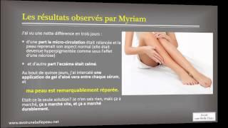 Enlever une cicatrice , le témoignage impressionnant de Myriam