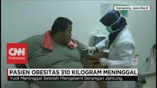 Pasien Obesitas 310 Kilogram Meninggal Dunia