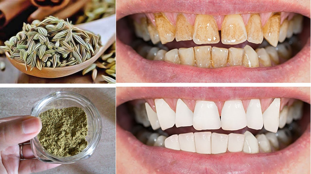 ضعها في فمك 3 دقائق فقط تبيض الاسنان وتزيل الاصفرار من اول استعمال ويزول الجير للأبد