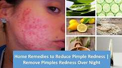 hqdefault - At Home Remedies To Reduce Pimple Redness