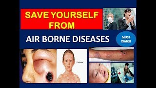 Airborne Diseases Its Causes Symptoms And Prevention