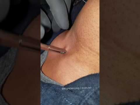 Dermal Anchor Removal