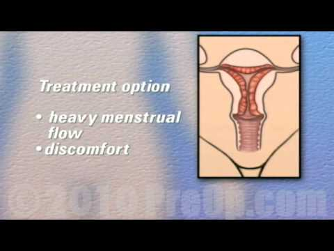 Preop Patient Edu Hysterectomy Removal Of Uterus Ovaries