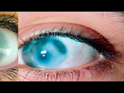 Как лечить повреждение роговицы глаза