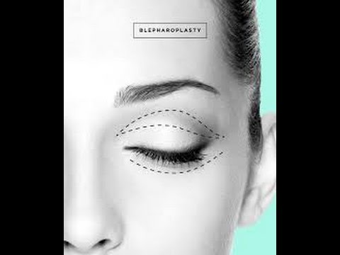 Before & After Eyelid Surgery by Dr. Emily Pollard