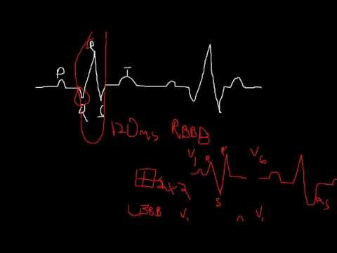 Intro to ECG's (Part IV) - Clinical waveform abnormalities