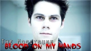 The Nogitsune ◊ Blood on my hands