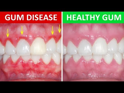 How to Get Rid of Gingivitis at Home (Gum Disease)