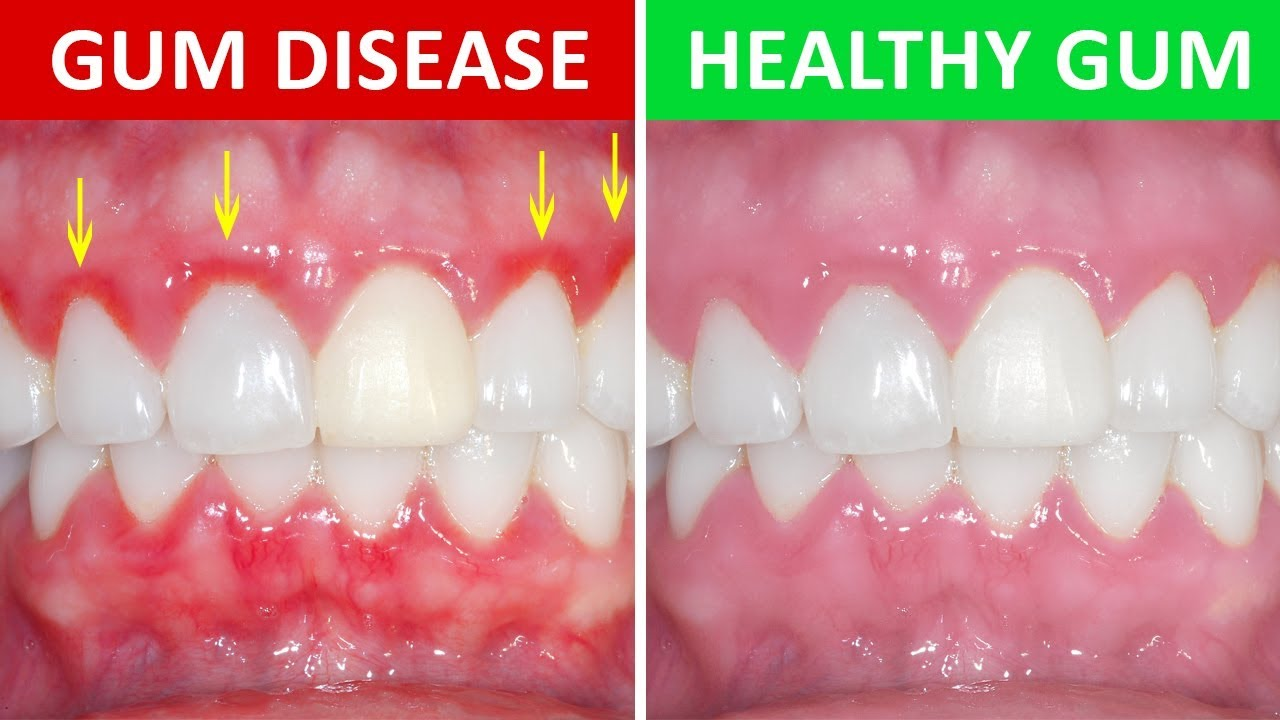 Image result for Gum Diseases
