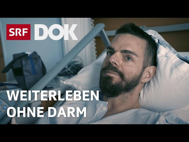 Colitis Ulcerosa – Moderator Robin Rehmann über seine Dickdarmentfernung | Reportage | SRF DOK