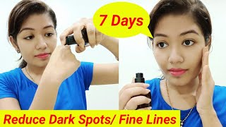 Remove Pigmentation/Age Spots Get Even Tone Skin | Theoly Vitamin C Serum For Skin || Krrish Sarkar