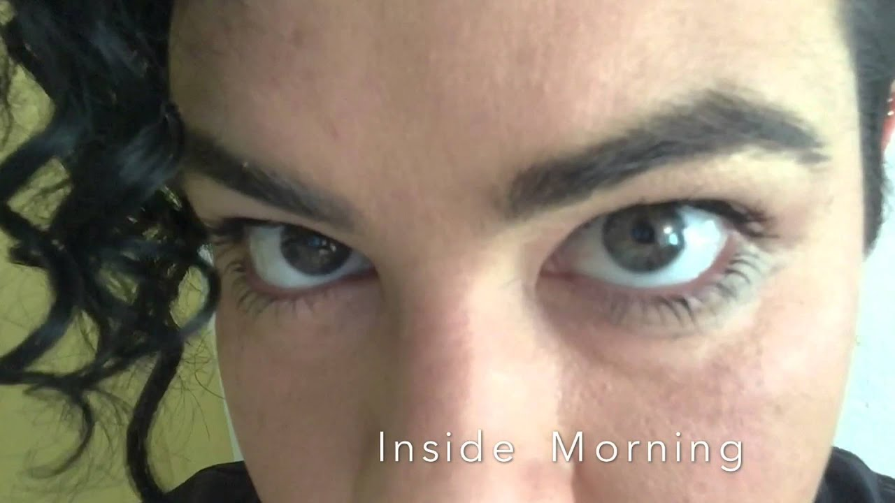 eye color change surgery update 4 months youtube - Eye Color Change Surgery Before And After