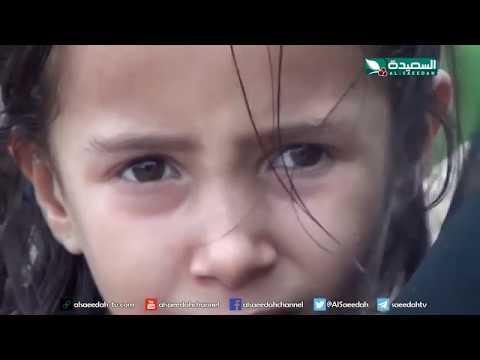 سنابل الخير - طفلة في التاسعة تعاني من تشوهات خلقية مؤلمة 29-7-2019م