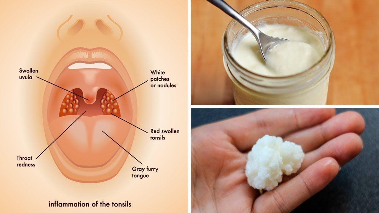 3 Powerful Home Remedies for Tonsil Stones That Work Fast! (Tonsilloliths)