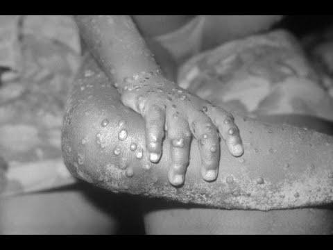 Texas: Monkeypox case reported in traveler to Nigeria - Outbreak ...