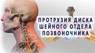Протрузия дисков шейного отдела позвоночника