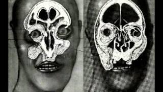 Atrax Morgue - Give Me A Corpse