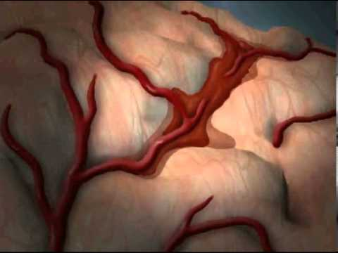 what is stroke cerebrovascular accident youtube