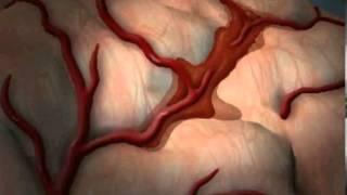 Скачать What Is Stroke Cerebrovascular Accident