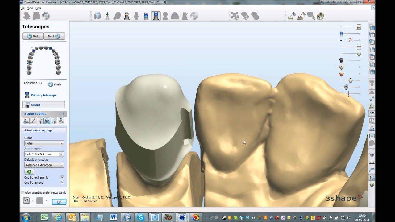 Dental system™ 2012 advanced telescope design youtube