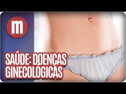Doenças ginecológicas - Saúde - Mulheres (13/06/16)
