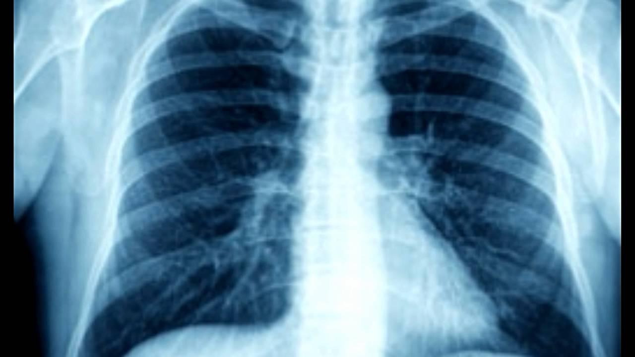 Granulomatous Lung Disease - YouTube