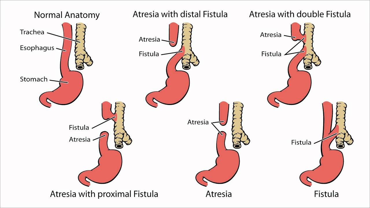 Esophageal Atresia - What is Esophageal Atresia - YouTube