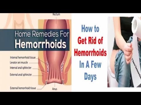 how-to-heal-hemorrhoids---how-to-get-rid-of-hemorrhoids-naturally