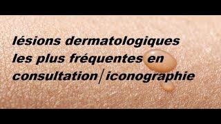 lésions dermatologiques les plus fréquentes en consultation│iconographie