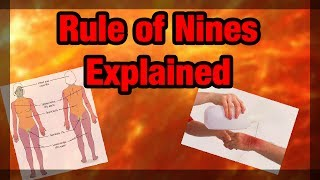 Rule of 9's Explained and Made EASY (Adult Version)