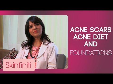 Acne Scars, Acne Diet & Foundations | #AskJaishree | Episode 1 | Skincare