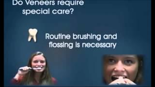 Как сделать зубы снова белыми  Что такое виниры?(В этом видео мы вам расскажем как можно снова восстановить красоту и блеск передних зубов. А так же поговор..., 2015-08-27T23:14:55.000Z)