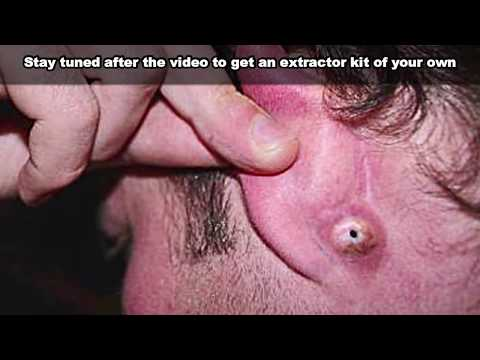 Amazing Ear Blackheads... Just Wait For It!