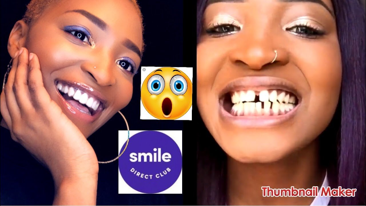 Candid Vs Smile Direct The Best At Home Braces For You