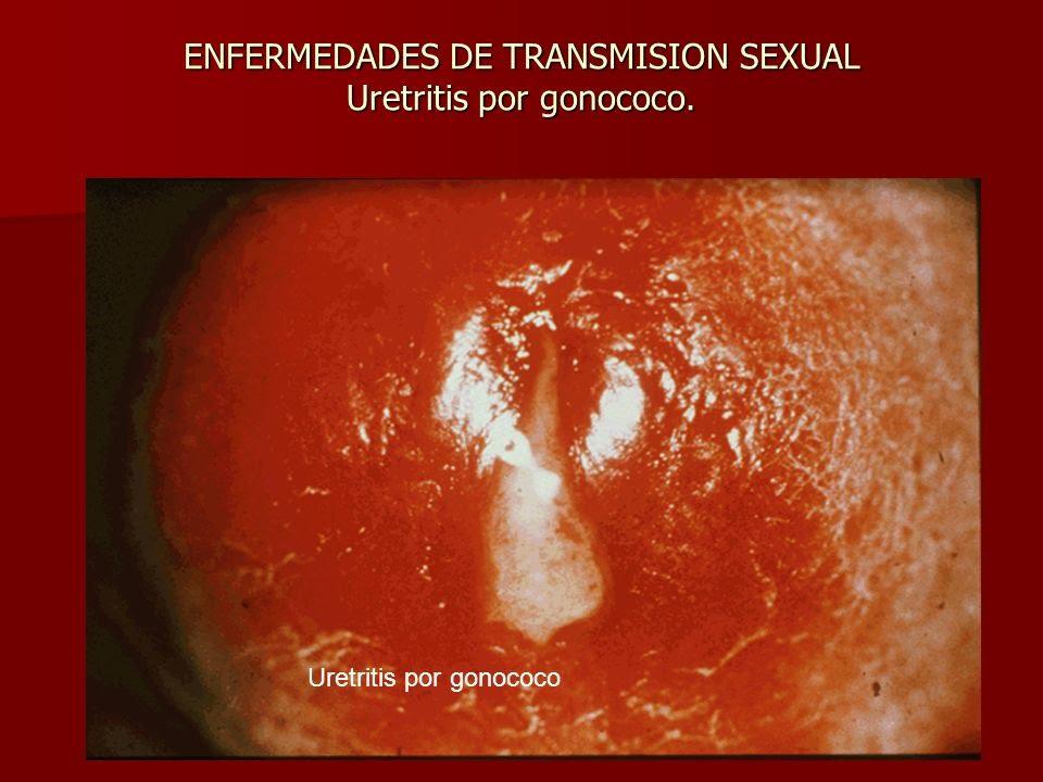 Uretitris y cervicitis. Síntomas, causas y tratamiento