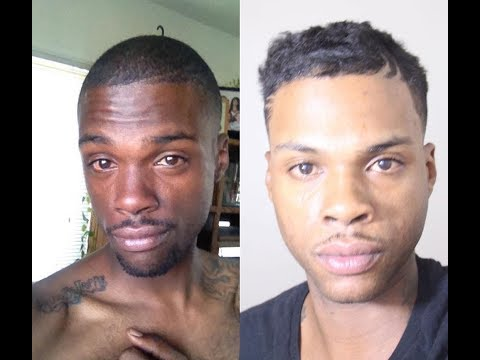 Man Lightens His Skin Using 'Natural Remedies' | HOOKED ON THE LOOK