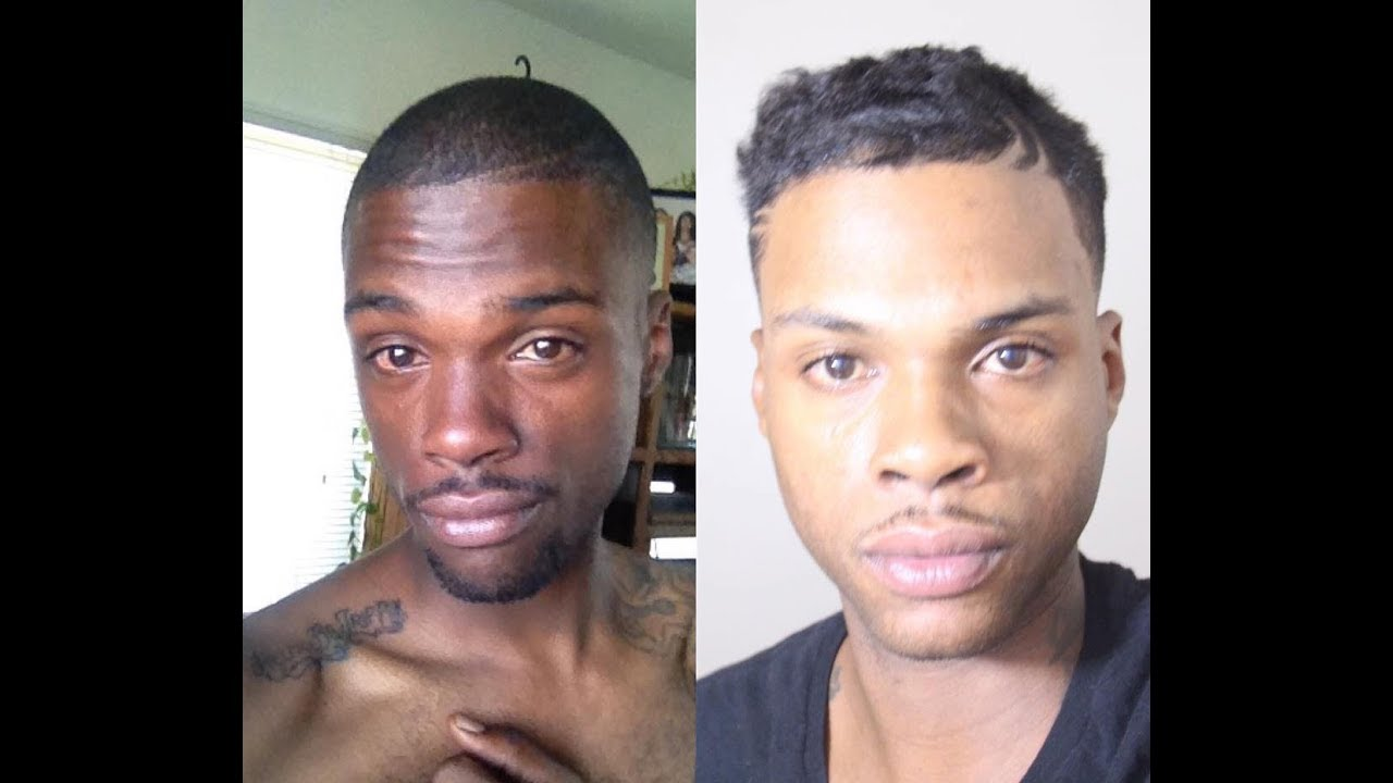 Man Lightens His Skin Using Natural Remedies Hooked On The Look