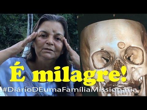 Testemunho! Milagre! imagens incríveis de uma cura! Deus ainda cura câncer!